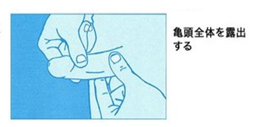 牽引型ペニス増大器具付け方3